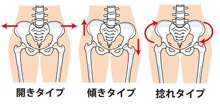 骨盤の傾きタイプ