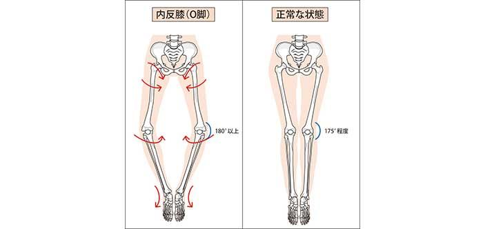 骨盤とO脚